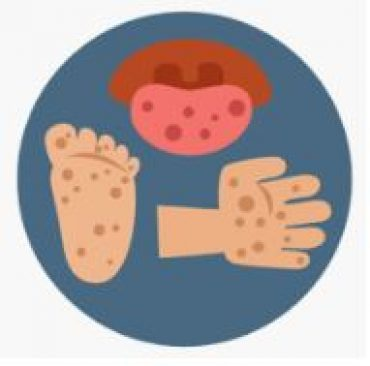 Health Notice: Hand, Foot and Mouth Disease